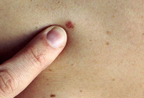 Elrákosodhat az anyajegy? Ismerd fel időben a bőrrák tüneteit