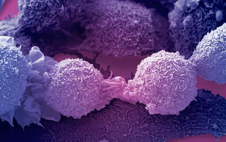 Zsákutca a rák ellenszerének kutatása – véli a Brit Rákkutató Intézet igazgatója