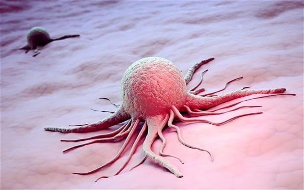 Egy hónap alatt gyógyítható a rák?