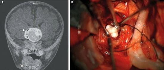 Fogakat találtak egy csecsemő agydaganatában