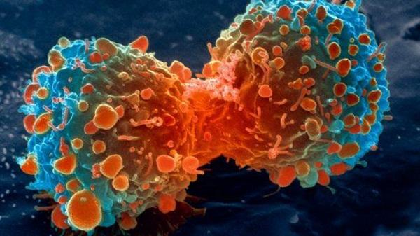 A rákos megbetegedés szervesen kapcsolódik az emberi léthez