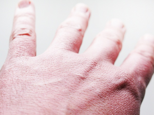 Hogyan óvjuk bőrünket a hideg időben?