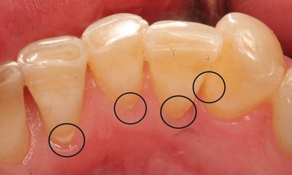 Így távolíthatjuk el a fogkövet házilag