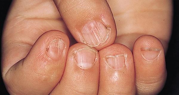 Körmeid jelzik bizonyos betegségek jelenlétét. 5 tünet, amit nem szabad figyelmen kívül hagyni!