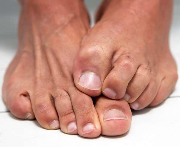 3 hatásos módszer, amivel természetesen szüntethető meg a köröm- és lábgomba