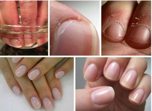 Ezzel a két hozzávalóval könnyedén megszabadulhatsz a körmök környékén felszakadozó bőrből!