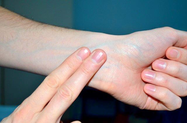 Ezzel az egyszerű teszttel megállapíthatod, hogy milyen allergiától szenvedsz!
