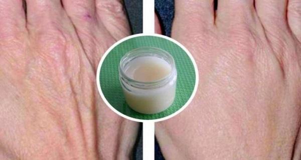Ez a házi készítésű kézkrém valóban csodát művel a bőrrel!