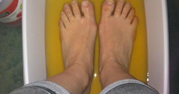 Ecetes vízben áztatta fertőzött, kellemetlen szagot árasztó lábait, majd elképedve tapasztalta, hogy milyen gyorsan megszűnt a probléma!