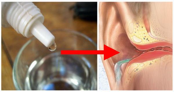 Tegyél pár csepp oxigénes vizet a füledbe. Azonnal érezni fogod a hatását!