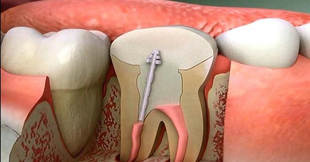 A gyökérkezelések jelentősen megnövelik a krónikus betegségek kialakulását, véli egy amerikai fogorvos!