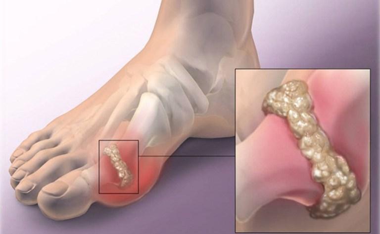 Így előzheted meg a húgysav kristályok kialakulását, amelyek a köszvényes betegségért felelősek!