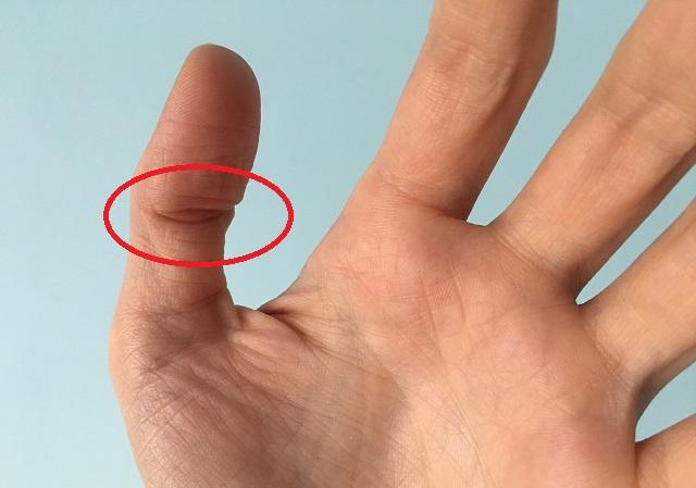Ha neked is van ilyen kontúr a hüvelykujjadon... Ezt tudnod kell!