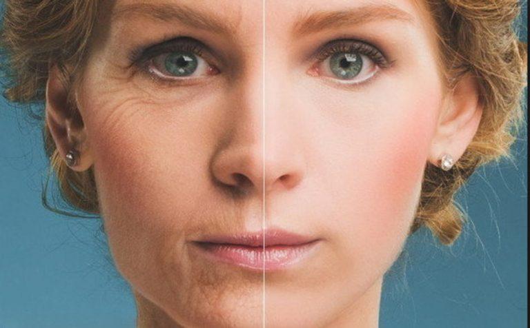 Ha szép arcbőrt szeretnél, kerülnöd kell a következő anyagokat, élelmiszereket!