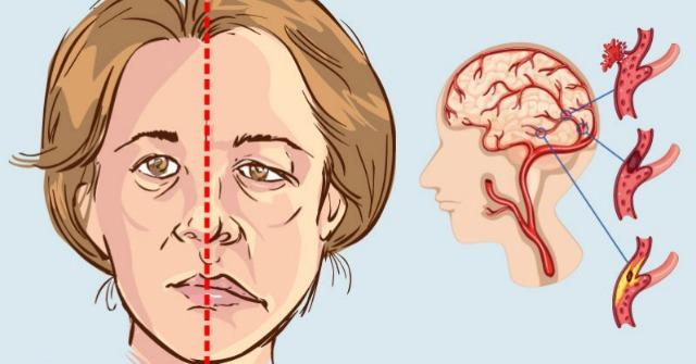 Honnan tudhatod, hogy stroke-ot kapsz napokkal azelőtt, hogy az megtörténne!