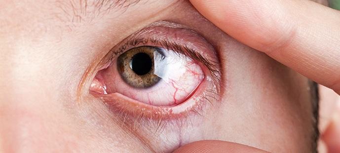 8 szokás, ami nem tesz jót a szem egészségének! Te is kerüld el ezeket!