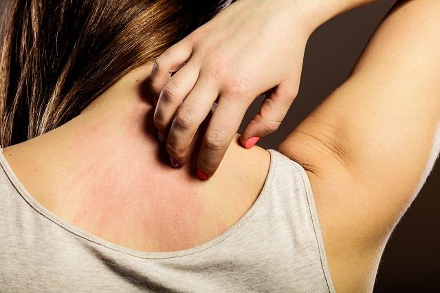 Az ételallergia 6 legalapvetőbb tünete, amit neked is ismerned kell