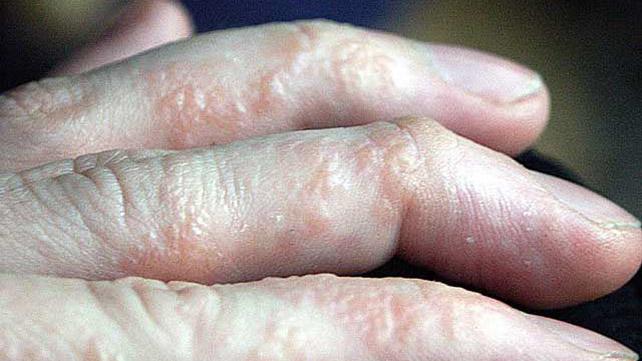 5 bőrbetegség, melynek okai a szervezet egészségi állapotában gyökerezik!