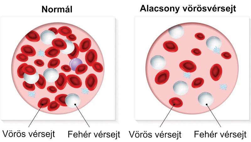 5 jel, ami arra utal, hogy kevés vörös vérsejttel rendelkezel!