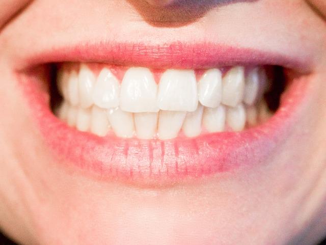 6 módszer, amivel enyhíthetsz a fogaid érzékenységén!