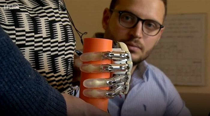 Először kaphatott tapintás érzésével rendelkező bionikus kart egy olasz nő