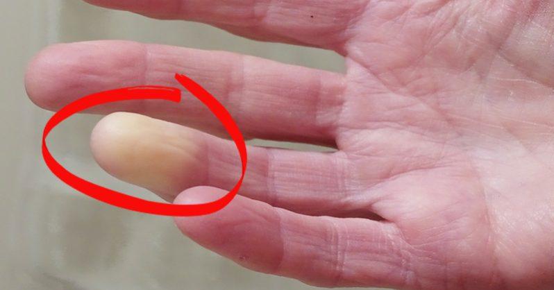 Így állíthatod meg a Raynaud-szindróma okozta kéz-, illetve lábfej fájdalmakat!