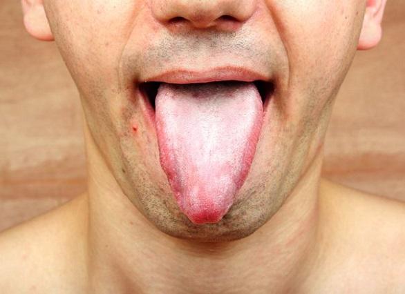 A tükörbe nézve azt észlelted, hogy fehéres lerakodás van a nyelveden? Ne hagyd figyelmen kívül ezt a dolgot!