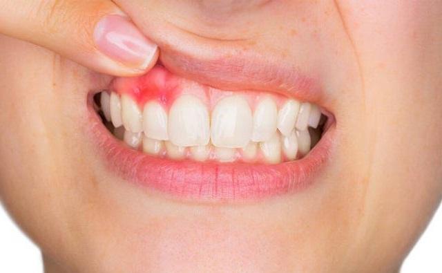 A fogínyvérzés 6 leggyakoribb oka, ami nálad is könnyen előfordulhat!