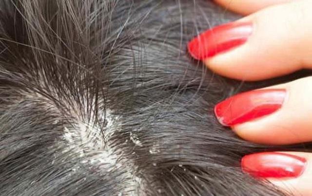 7 házi praktika a korpás fejbőr kezelésére!
