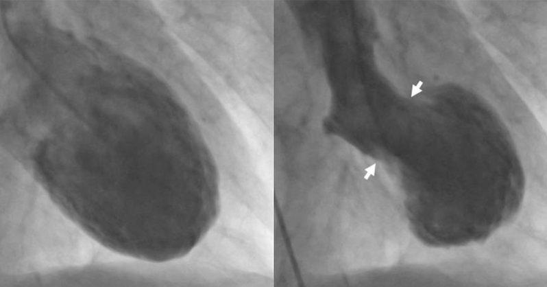 Az összetört szív szindróma egy valóban létező betegség!