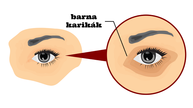 5 egyszerű módszer, melyek segítségével megszabadulhatsz a szem alatti karikáktól!