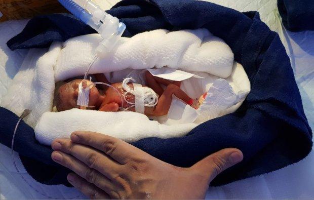 Egy 12 hétre született koraszülött csecsemő hihetetlen története!