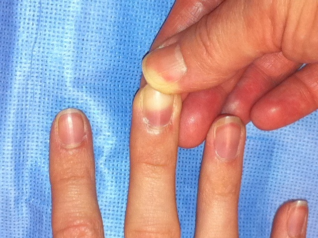 Kékes a körmöd, esetleg folyton betöredezik? – Ezeket a betegségeket jelezhetik a tünetek