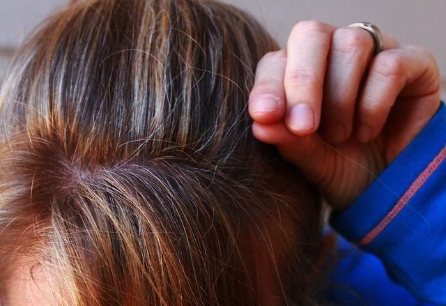Az ősz hajszálak nemcsak az öregedéstől jelenhetnek meg. Ez lehet az oka és így oldhatod meg!