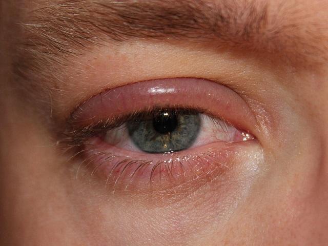 Erről a 6 betegségről árulkodhatnak a szemeid!