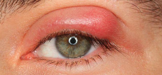 A szemárpa kialakulásának 8 korai jele! – Ha figyelsz ezekre megelőzheted a műtétet is