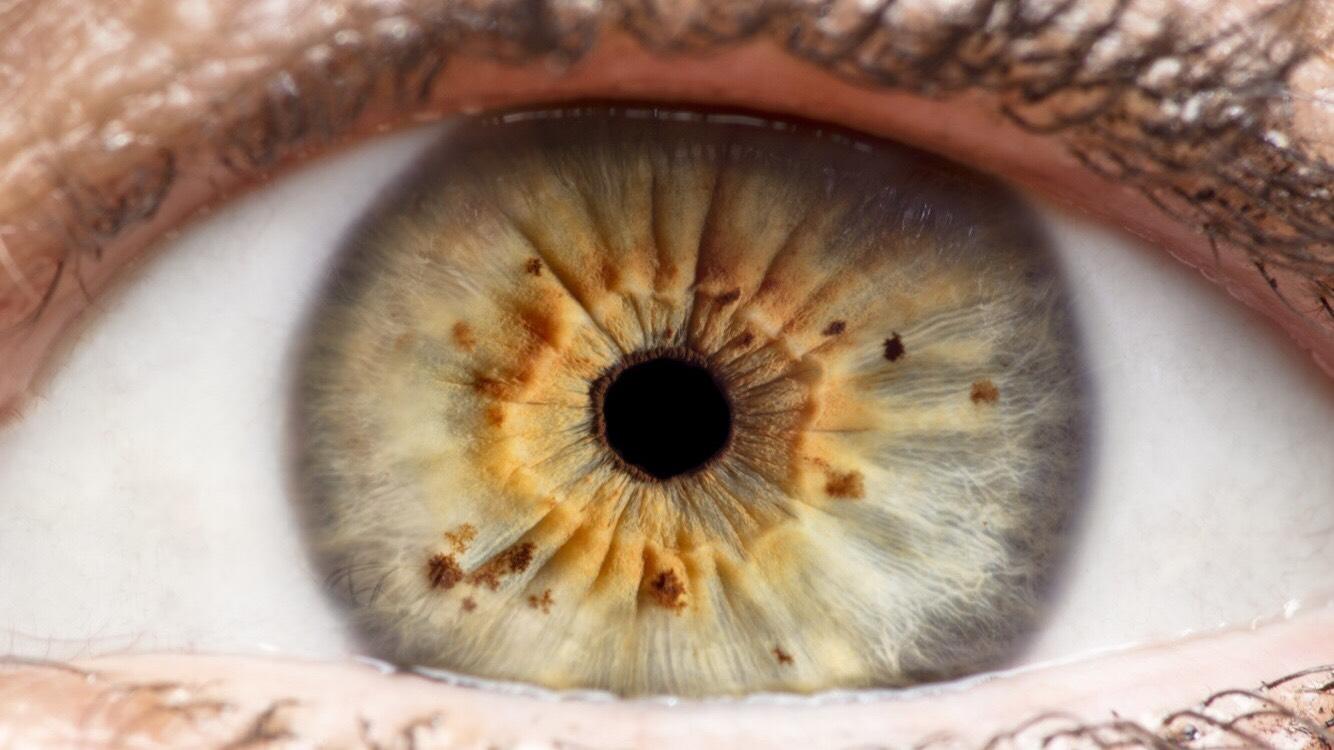 A nehézfém-mérgezés 9 gyakori tünete, amiről valószínűleg nem is tudtál!
