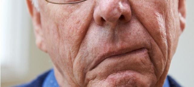 Jelentősen elősegíti a stroke utáni gyógyulást egy magyar fejlesztésű hatóanyag