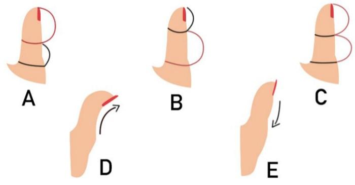 A hüvelykujjad formája rendkívül sok mindent elárul a személyiségedről. A tiéd melyikre illik az 5 közül?