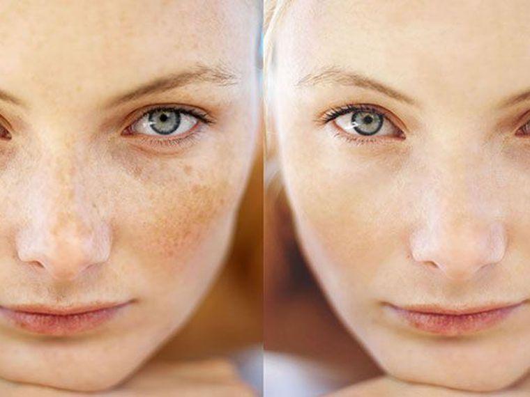 4 hatékony módszer, hogy megszabadulj a nap által okozott barna foltoktól!