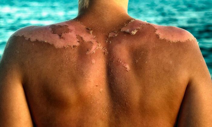 A legújabb kutatások szerint nem a Nap okozza a bőrrák, hanem a naptejek!