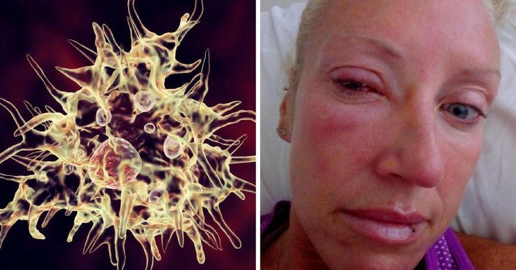 Ez a nő szinte elvesztette látását, mert egy vírus befészkelte magát a kontaktlencséjébe!