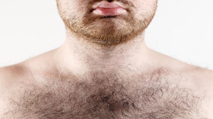 7 egészségügyi probléma, amiről a testszőrzeted árulkodik