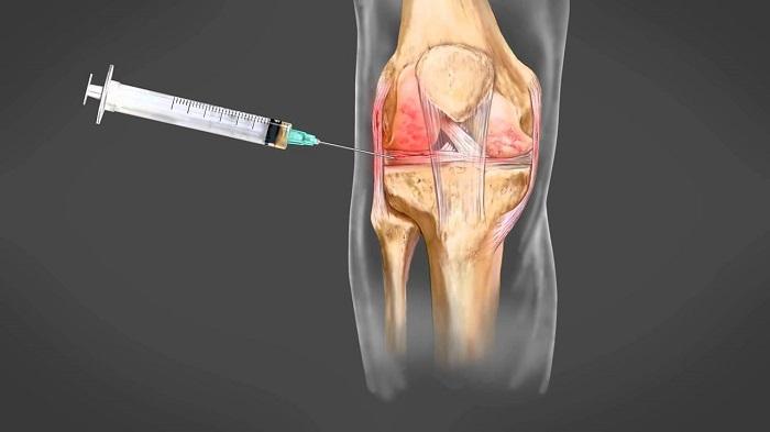 Ez a forradalmian új terápia helyreállítja a csontokat és az ízületeket