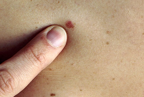 bőrrák foltok hogyan nyilvánul meg a helminthiasis?