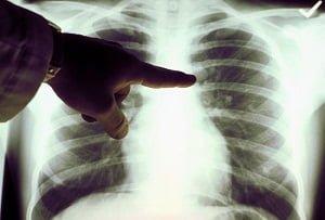 Egy 8 éves gyerek Kína legfiatalabb tüdőrákos betege