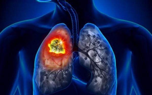 20 évig is lappanghat a tüdőrák
