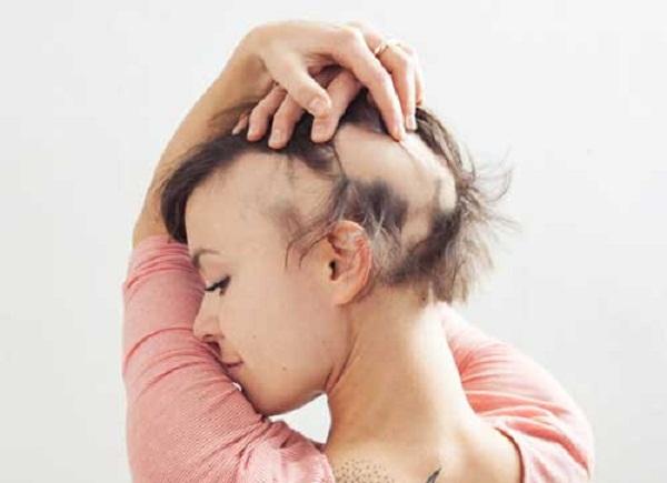 Női alopecia: nem csak a férfiak kopaszodnak!
