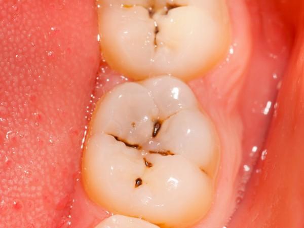 Hogyan akadályozzuk meg a fogszuvasodást otthon?