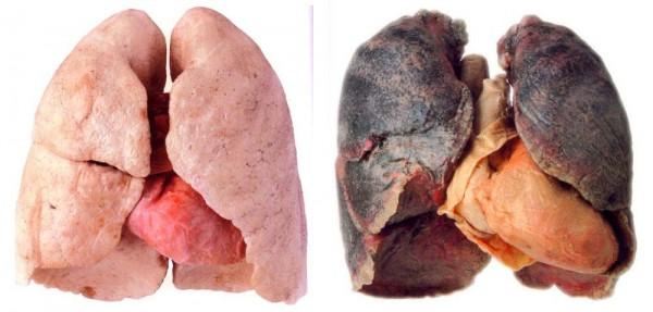 Ez a legjobb módja annak, hogy megszabadítsuk tüdőnket a nikotintól és a kátránytól!